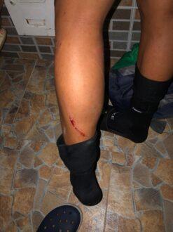 Jóvenes fueron arrollados por un vehículo en Yopal - Noticias de Colombia